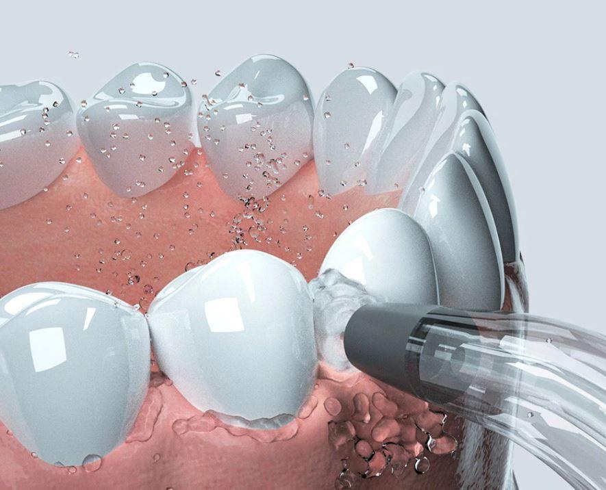 Oclean W1 - irygator z Aliexpress - czyszczenie zębów