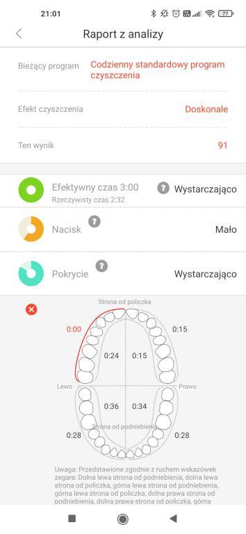 Oclean X Pro Elite - recenzja wyjątkowo cichej szczoteczki sonicznej - strefy szczotkowania w aplikacji